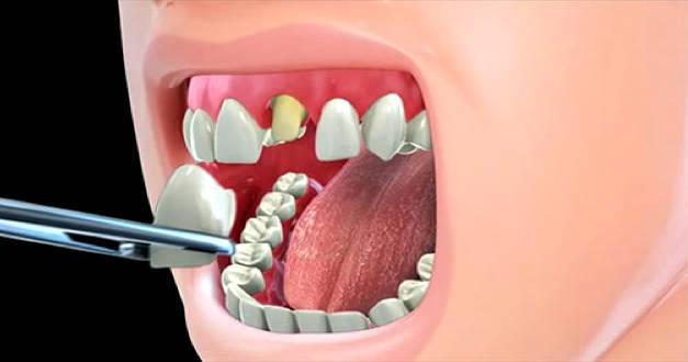 Снятие коронки зуба